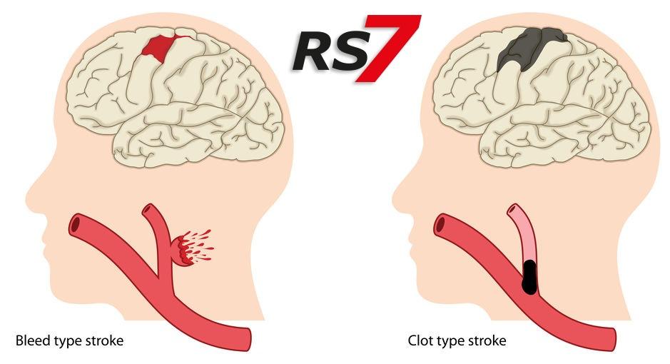 qué es el ictus cerebral