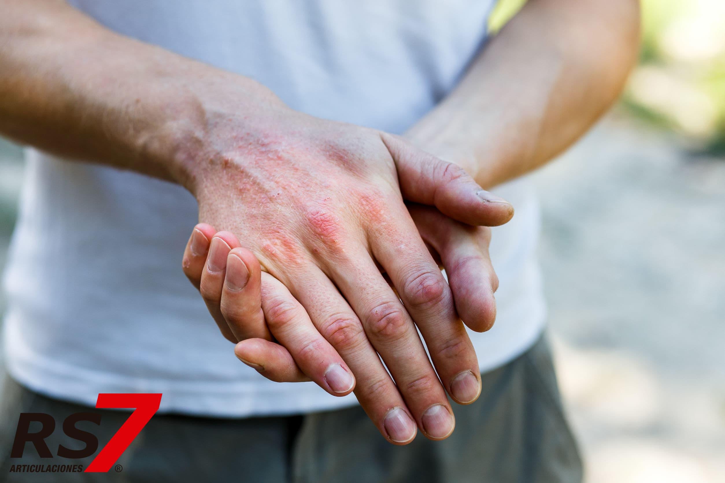 sintomas frecuentes de la artritis psoriasica